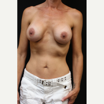42 year old woman treated with Mentor Breast Implants after 3070961