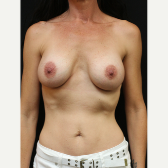 42 year old woman treated with Mentor Breast Implants before 3070961