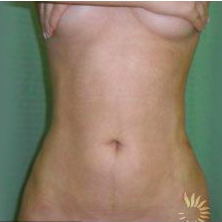 Slim Lipo after 3056391