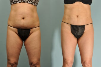 58 yr old female Smartlipo abdomen, hips & flanks 6 wks post tx after 1053194