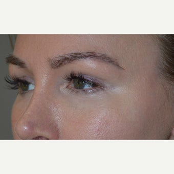 Nonsurgical eyelid rejuvenation in a young female, using filler injection around eyes. after 2060302