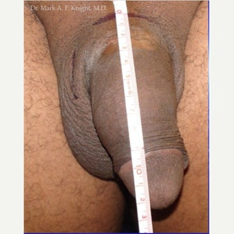 35-44 year old man treated with Penis Enlargement before 2289315