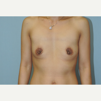 25-34 year old woman treated with Breast Augmentation before 3449033