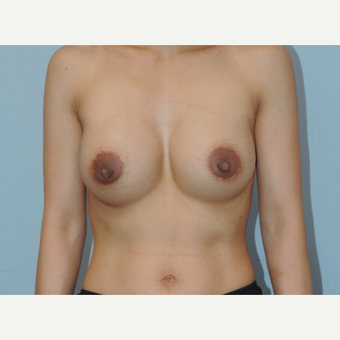 25-34 year old woman treated with Breast Augmentation after 3449033
