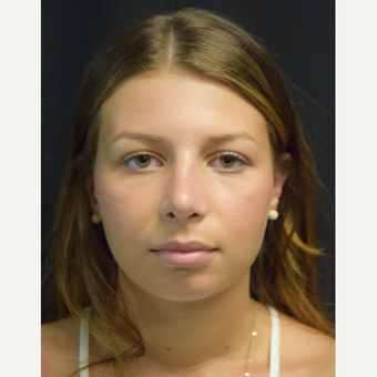 18-24 year old woman treated with Rhinoplasty after 3179623