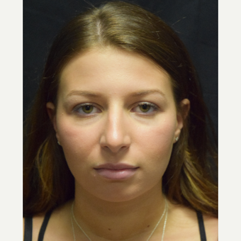 18-24 year old woman treated with Rhinoplasty before 3179623