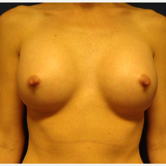 25-34 year old woman treated with Breast Implants after 3670847