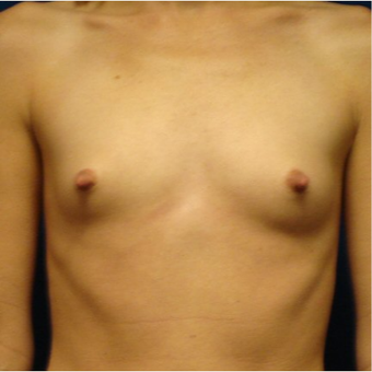 25-34 year old woman treated with Breast Implants before 3670847