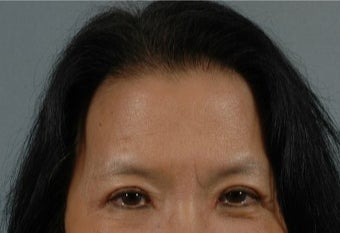 45-54 year old woman treated with Asian Eyelid Surgery after 3615931