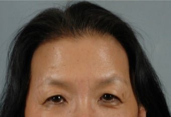 45-54 year old woman treated with Asian Eyelid Surgery before 3615931