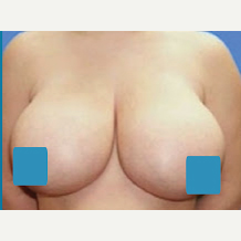 35-44 year old woman treated with Breast Reduction before 3374857