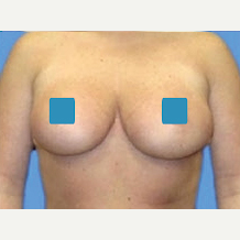 35-44 year old woman treated with Breast Reduction after 3374857