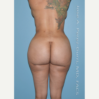 25-34 year old woman treated with Brazilian Butt Lift after 3245086