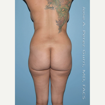 25-34 year old woman treated with Brazilian Butt Lift before 3245086