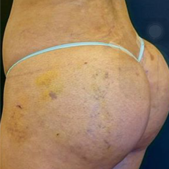 18-24 year old woman treated with Brazilian Butt Lift after 2574558