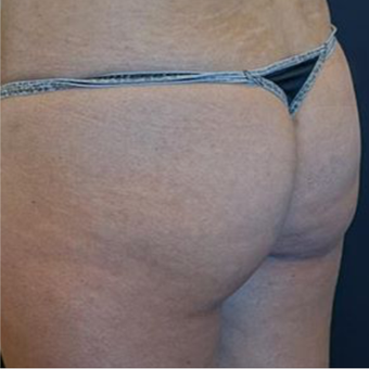 18-24 year old woman treated with Brazilian Butt Lift before 2574558