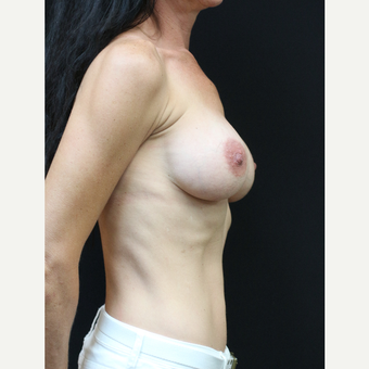 42 year old woman treated with Mentor Breast Implants before 3070992