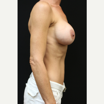 42 year old woman treated with Mentor Breast Implants after 3070992