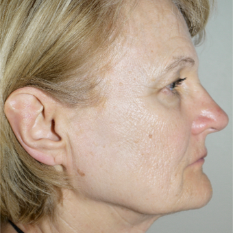 55-64 year old woman treated with Facelift before 3095786