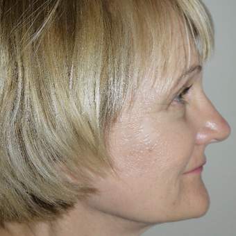 55-64 year old woman treated with Facelift after 3095786