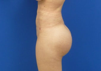 Brazilian Butt Lift via fat transfer 833988