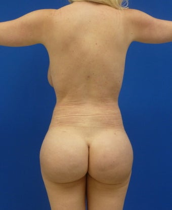 Brazilian Butt Lift via fat transfer after 833988