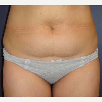 35-44 year old woman treated with Mini Tummy Tuck before 3069515