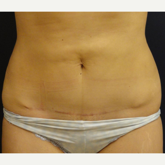 35-44 year old woman treated with Mini Tummy Tuck after 3069515