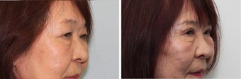 Before and 2 month after double eyelid surgery 683360