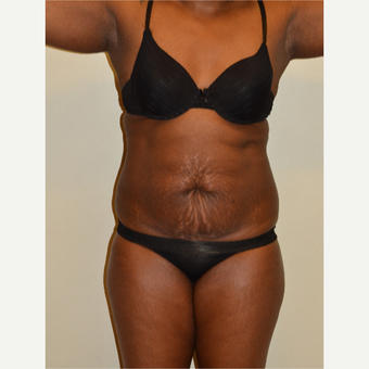 18-24 year old woman treated with Tummy Tuck before 2858519