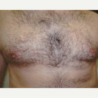 45-54 year old man treated with Liposuction after 3367266