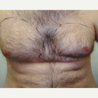 45-54 year old man treated with Liposuction before 3367266