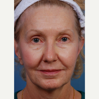 65-74 year old woman treated with Chemical Peel before 3761482