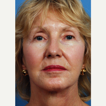 65-74 year old woman treated with Chemical Peel after 3761482