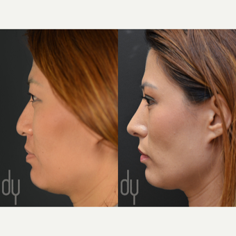 25-34 year old woman treated with Asian Rhinoplasty before 2990840