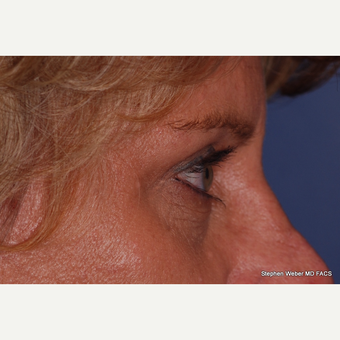 45-54 year old woman treated with Eyelid Surgery after 3624422