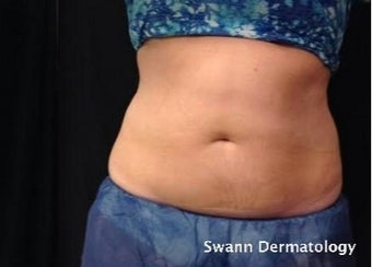 35-44 year old woman treated with CoolSculpting after 2246808