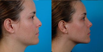 32-year-old woman treated with Rhinoplasty. after 3287957