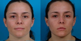 32-year-old woman treated with Rhinoplasty. before 3287957