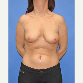 35-44 year old woman treated with Breast Reconstruction before 2524662