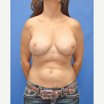 35-44 year old woman treated with Breast Reconstruction after 2524662