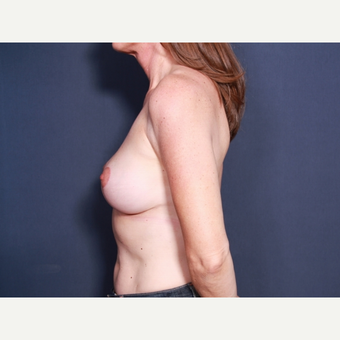 45-54 year old woman treated with Breast Lift with Implants (view 2 of 2) after 3658096