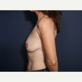 45-54 year old woman treated with Breast Lift with Implants (view 2 of 2) before 3658096