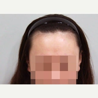 25-34 year old woman treated with Forehead Reduction before 2006866