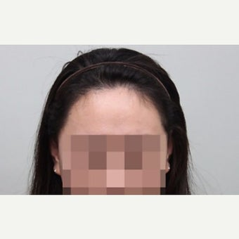 25-34 year old woman treated with Forehead Reduction after 2006866