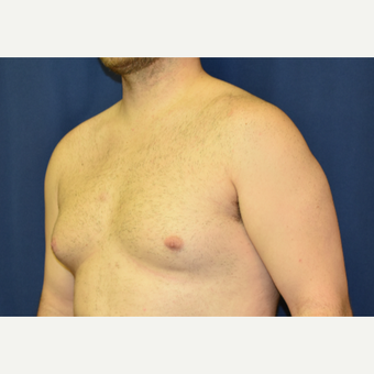25-34 year old woman treated with Male Breast Reduction before 3788313