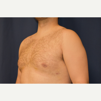 25-34 year old woman treated with Male Breast Reduction after 3788313