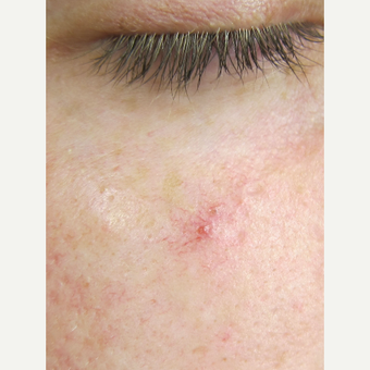 35-44 year old woman treated with Laser Treatment before 3305977