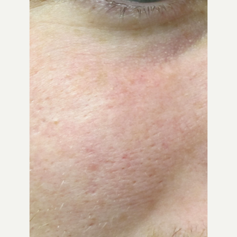 35-44 year old woman treated with Laser Treatment after 3305977