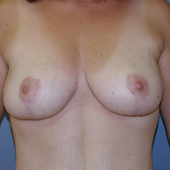 38  year old woman treated with Breast Reduction after 3059954